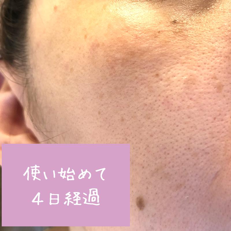 使用前の肌の状態(ホタル(HOTARU)使用して4日後)