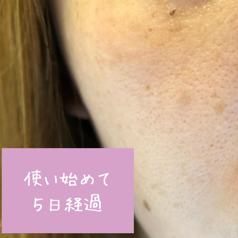 使用前の肌の状態(ホタル(HOTARU)使用して5日後)