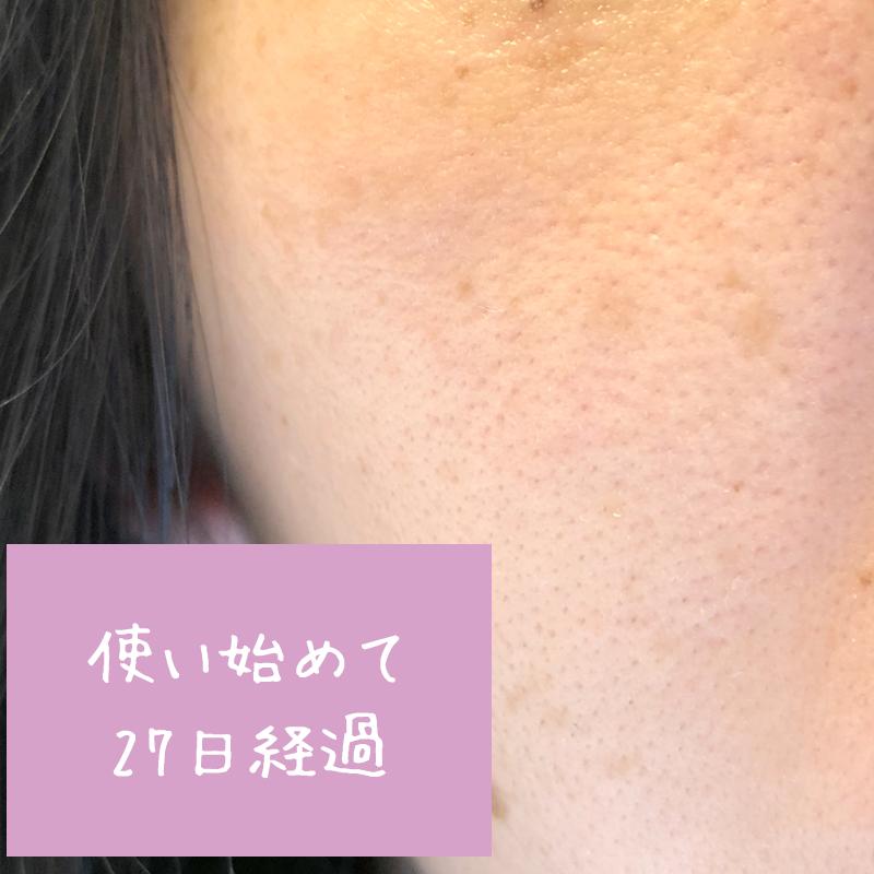 使用前の肌の状態(ホタル(HOTARU)使用して27日後)
